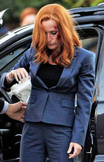 X-Files Season 11 Filming Dana Scully Gillian Anderson Car Crash Scene Bleeding